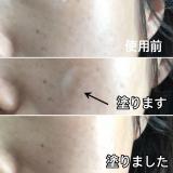 たるみやシワに 王妃の艶肌 の画像(4枚目)