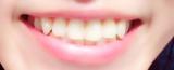 イオンの力でつるっつるの歯に♡持ち運びにも便利な電動歯ブラシ!の画像(1枚目)