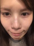 顔全体の写真