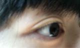 「目元のたるみがたったの10日間で確実に効果あり!」の画像(4枚目)