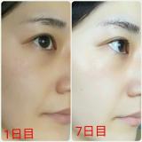 【効果・結果】ボタニカル 酵素洗顔 αPINI28の画像(3枚目)