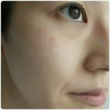 【効果・結果】ボタニカル 酵素洗顔 αPINI28の画像(5枚目)