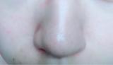 いちご鼻改善!?効果はありです♡の画像(2枚目)