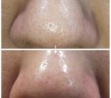 鼻の毛穴の黒ずみに美鼻革命の画像(14枚目)