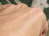 お肌が弱い!超敏感肌さん!肌バリアを強化するセラミドスキンケアの画像(8枚目)