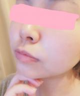 「セレビューティー プラワンシーハイドロゲル フェイスマスク アルティメイトをレビュー♪」の画像(4枚目)