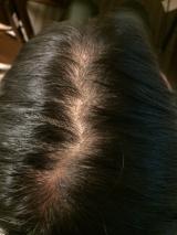抜け毛からの発毛の画像(2枚目)