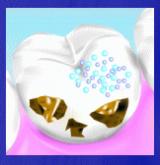 パールのような白く輝く歯を目指したい!「ホワイティプロ」の画像(3枚目)