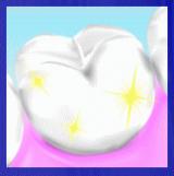 パールのような白く輝く歯を目指したい!「ホワイティプロ」の画像(5枚目)