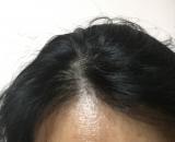 ファーサ 育毛剤の画像(8枚目)