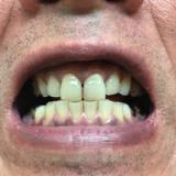 イオン歯ブラシKISS YOUの画像(1枚目)