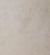 マイクロニードルを採用したクオニス 桜白 美白美容液&パッチセットの画像(5枚目)