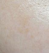 マイクロニードルを採用したクオニス 桜白 美白美容液&パッチセットの画像(6枚目)