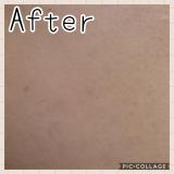 少量で毛穴の開きに効く 薬用美白クリーム【アンプルール 薬用デイ&ナイトクリーム】の画像(5枚目)
