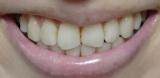 歯の黄ばみやヤニに!自宅で簡単♪ホワイトニング美容液「Whity Pro」の画像(3枚目)