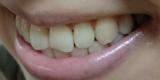 歯の黄ばみやヤニに!自宅で簡単♪ホワイトニング美容液「Whity Pro」の画像(4枚目)