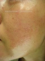 肌に負担をかけないメイク落としで乾燥肌も安心:新アルファピニ28 ボタニカル セラムクレンジング②の画像(3枚目)