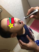 子供歯ブラシ KISS YOUの画像(2枚目)