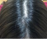 乾燥頭皮の悩み
