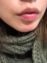 「唇ケア」の画像(2枚目)