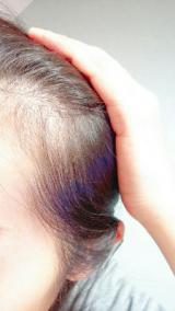 長春毛精の成果の画像(2枚目)