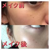 「高濃度ビタミンCの化粧水でくすみ、毛穴、ニキビ解決!」の画像(4枚目)