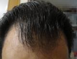 3か月「ビタブリッドCヘアー トニックセット EX」チャレンジ中の画像(9枚目)