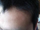 ビタブリッドCヘアー トニックセット EX 3か月中の1か月目の画像(7枚目)
