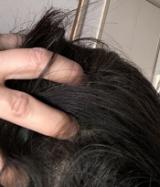 長春毛精の画像(4枚目)