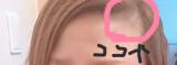 ビタブリッドCヘアー トニックセット EXの画像(3枚目)