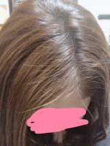 ビタブリッドCヘアー トニックセット EXの画像(4枚目)