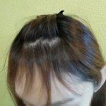 産後の抜け毛ケアどうする?頭皮用美容液ナノインパクトで頭皮ケアしてみた!の画像(2枚目)