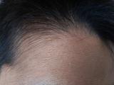 ビタブリッドCヘアー トニックセット EX 3か月中の2か月目の画像(6枚目)