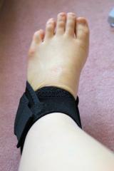エイダーの足首サポーターでねんざの痛みが軽減した!の画像(5枚目)