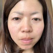 「ほうれい線とシワケア」6名様☆たるみによるほうれい線美容液10日間モニター募集【422】の投稿画像