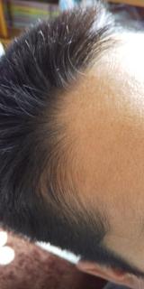 ビタブリッドCヘアー トニックセット EX 3か月中の3か月目の画像(7枚目)