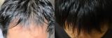 【薬用発毛促進剤】 ビタブリッドCヘアーEX3か月チャレンジ③ 最終経過の画像(2枚目)