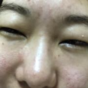 「小じわ」★塗るだけフェイスマスク★ 薬用リペアベールエッセンス 長期モニター募集!!の投稿画像
