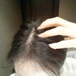 頭皮のケア、できてますか??・まだはげてないから大丈夫!っと思ってませんか??・紫外線やストレス、摩擦とかで頭皮は傷んでるんですよ!傷みをケアしないと綺麗な髪は生えません!スキンケアと…のInstagram画像