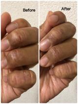 当選報告☆アレルナイトプラス《生理前にアトピー悪化しなかった!》の画像(11枚目)