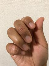 当選報告☆アレルナイトプラス《生理前にアトピー悪化しなかった!》の画像(3枚目)