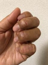 当選報告☆アレルナイトプラス《生理前にアトピー悪化しなかった!》の画像(4枚目)