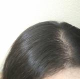 「薄毛」の画像(1枚目)