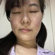 「たるみ」10名様募集!!たるみによるほうれい線ケア美容液が試せるチャンス【434】の投稿画像