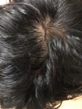 オンライン発毛サービス「自宅でリーブ」の画像(15枚目)