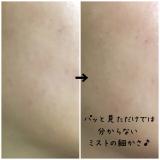 【オキシゲナイザー】酸素水ミストスプレーの画像(6枚目)
