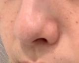 いちご鼻に!Dot Washyの画像(7枚目)