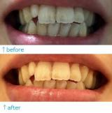 【歯の写真注意】薬用ホワトニングデンタクリーンを1週間使用してみた感想(^^♪の画像(3枚目)