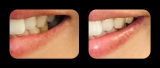 ホワイトニング歯磨き粉の画像(3枚目)
