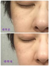 モッチスキン吸着泡洗顔の画像(5枚目)